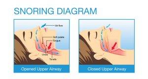 snore doctor